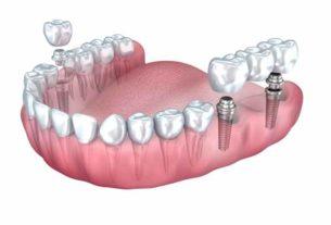 Najnowocześniejsze rozwiązania implantologiczne dla pięknego uśmiechu